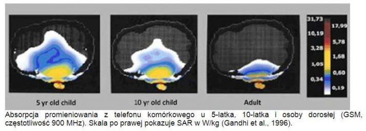 5G a zdrowie [raport]: Nowy wspaniały świat czy masowe narażanie ludzi na zagrożenia nowotworowe ? Absorpcja promieniowania telefonu 5LAT 10LAT dorosly